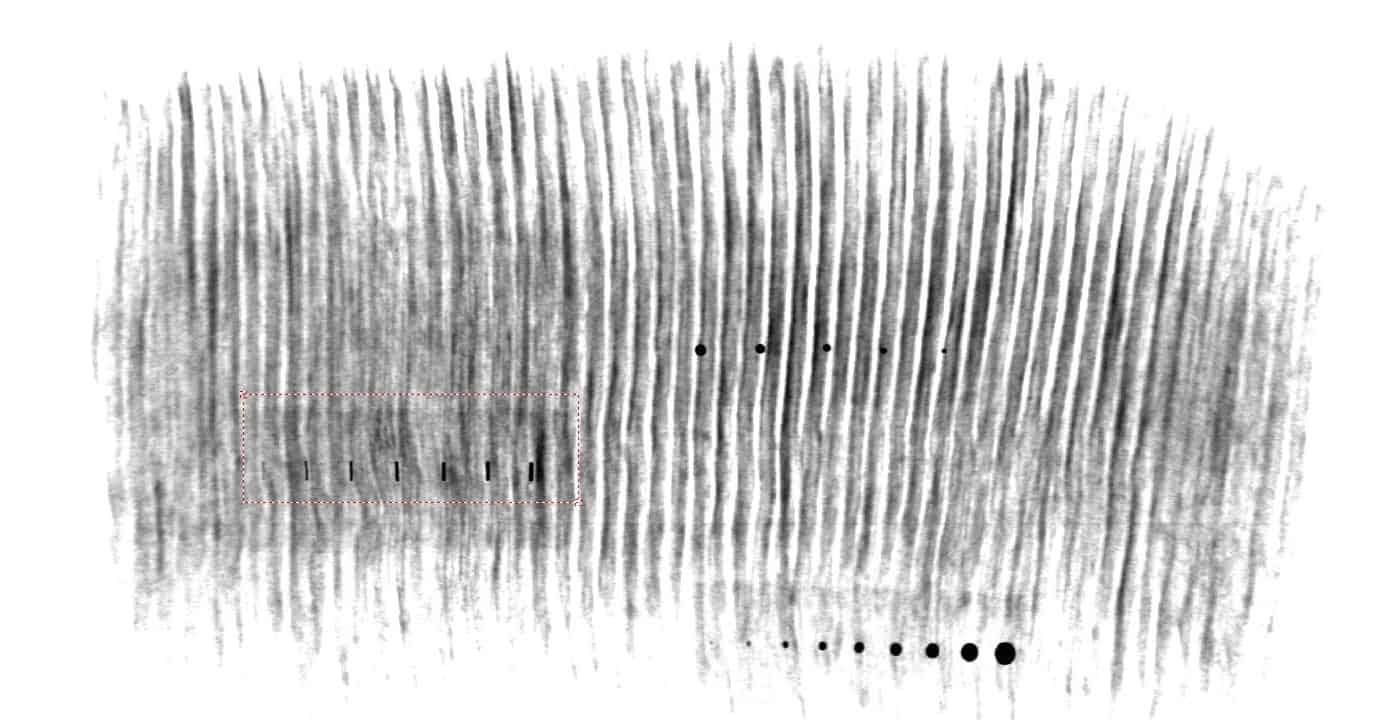 diaper x-ray image
